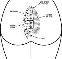 Pilonidal Cleft-Lift Surgery Dr Immerman's Article